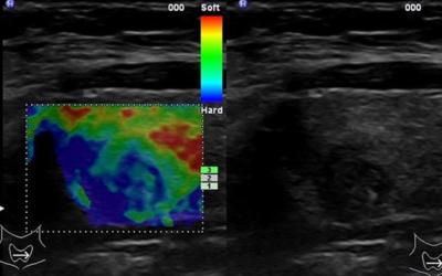 Ultraskaņas elastogrāfija